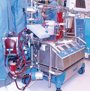 I think this is a picture of one of those machines that pumps the blood when your heart isn't doing it.)(Photo Credit: FirstHeartNorth.com)